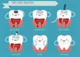 Can Cavities Without Crowns Still Be Treated?