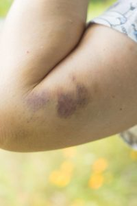 Illustration of Causes Bruises In Almost All Parts Of The Body?
