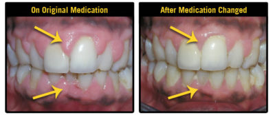 Illustration of How To Deal With Swollen Gums Bleeding And Cavities?