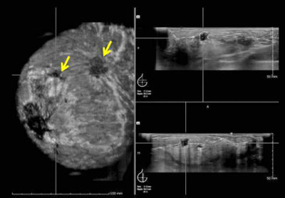 Illustration of Explanation Of The Results Of Ultrasound Of Breast Cysts?