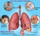 Can Pneumonia Completely Recover?