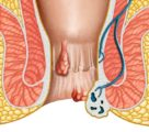 How To Deal With Hemorrhoids During Pregnancy And Breastfeeding?