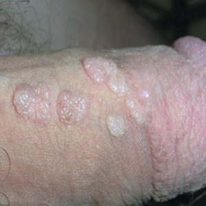 Illustration of Small Spots Like Warts On The Penis?
