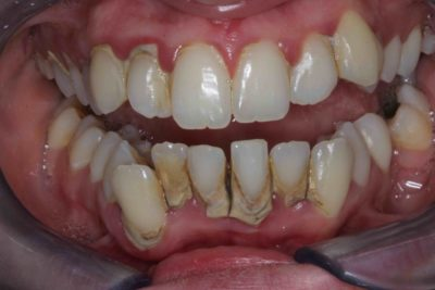 Illustration of Overcoming Teeth That Are Not Intact With Braces?