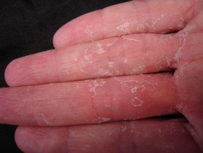 Illustration of Watery Spots On The Palms And Legs And Skin Peeling Off?