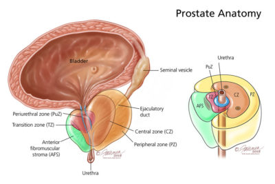 Illustration of Pain When Urinating And High Prostate Levels?