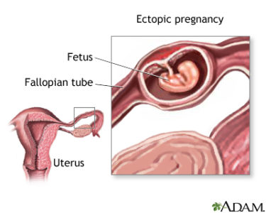 Illustration of Is It Dangerous To Have A Fetus Near The Fallopian Tube At 8 Weeks Of Pregnancy?