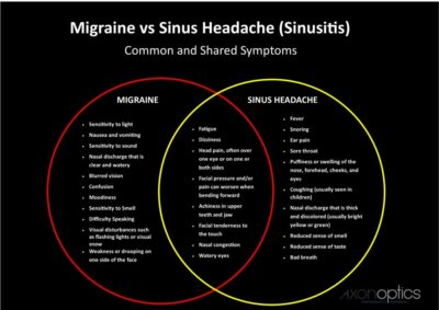 Illustration of The Cause Of Headaches And Nausea, Vomiting, Is Sinusitis Or Typhus?