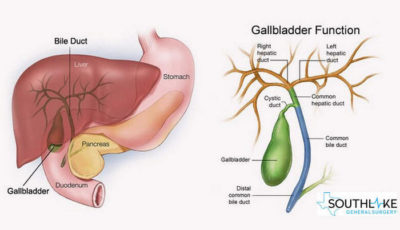Illustration of Are There Any Side Effects After Surgical Removal Of Bile?