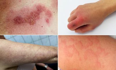 Illustration of Is It Possible To Treat Itchy Red Spots Using Potassium Permanganate For A 9 Month Baby?