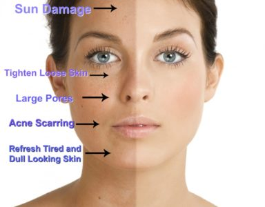 Illustration of How To Deal With Uneven Facial Skin Due To Peeling?