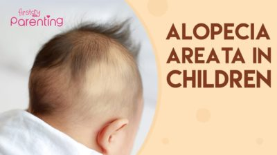 Illustration of Causes And Ways To Deal With Hair Loss In Babies Aged 11 Months?