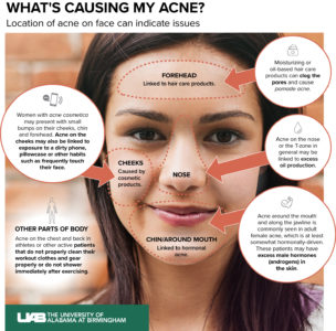 Illustration of The Cause Of Acne On The Forehead And Near The Nose Is Getting Worse After Taking Acne Medicine?