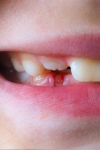 Illustration of How To Deal With The Wound In The Gums So They Do Not Become Thrush?