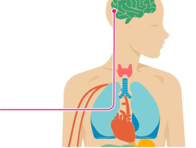 Illustration of Blockage In The Brain Stem And Complications To The Lungs, Stomach And Kidneys Do I Need CPR?