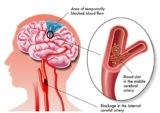 Management Of Blockages In The Brain?