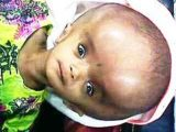 Why Does The Eye Down In Patients With Hydrocephalus?