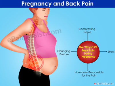 Illustration of The Possibility Of Pregnancy From Back Pain With Nausea And Dizziness?