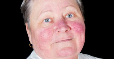 Illustration of Purplish Red Bumps On The Cheeks Of The Face And Pain Spreads To The Ears?