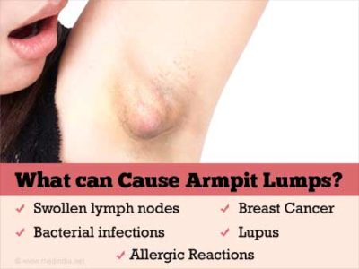 Illustration of The Cause Is A Lump In The Armpit And In The Chest Like A Lump But Bone?