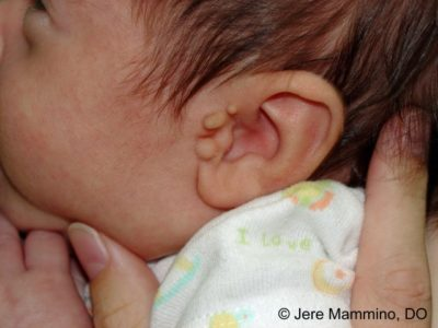 Illustration of Grow Soft Meat Behind The Ear From Birth?