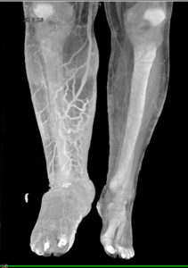Illustration of Can Palms And Soles Be X-rayed With BPJS?