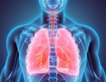 Can Chronic Lung Disease Still Be Treated?