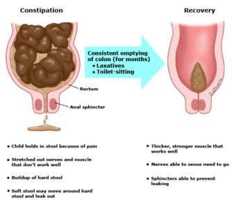 Illustration of Substitution Of Milk In Children After Difficult Bowel Movements?
