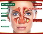 Signs Of A Sinusitis Surgery Are Needed?