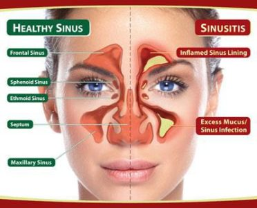 Illustration of Signs Of A Sinusitis Surgery Are Needed?