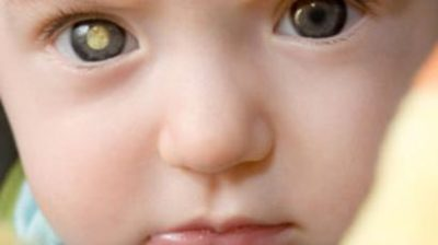 Illustration of The Eyes Of 8 Month Old Babies Have Glowing White Spots?