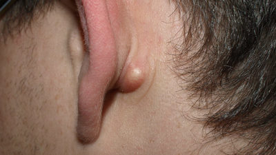 Illustration of A Lump Behind The Ear Accompanied By Red Spots In An 18-month-old Child?