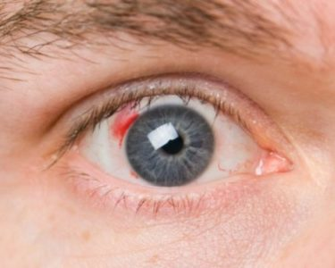 Illustration of The Whites Of Your Eyes Bleed Because You Accidentally Punched The Child?