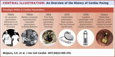 Illustration of Problems With Pacemaker Function Accompanied By A History Of Chronic Obstructive Pulmonary Disease?