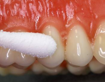 Illustration of Causes And Ways To Deal With Incisor Pain And Swollen Gums?