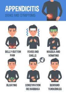 Illustration of Signs And Symptoms Of Appendicitis?