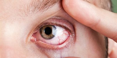 Illustration of How To Deal With Eye Irritation?