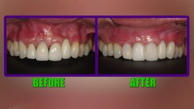 Illustration of How To Deal With Dental Seams That Are Open Again?