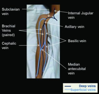 Illustration of Management Of Swelling In The Arm After Hemodialysis?