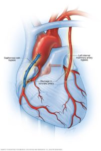 Illustration of Procedure For Heart Bypass Surgery?