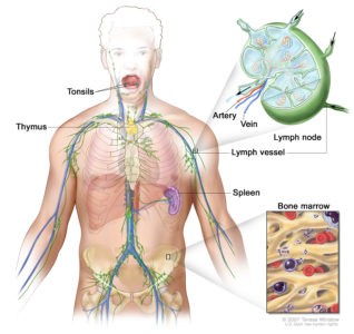 Illustration of Is Lymphoma Cancer A Hereditary Disease?