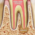 Causes Of Toothache After Removal Of The Remaining Tooth Roots?