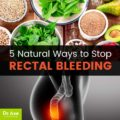 Causes And Ways To Treat Bloody Bowel Movements For A Week?