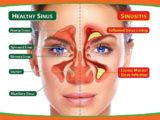 Can I Nasal Irrigation When My Nose Is Blocked?