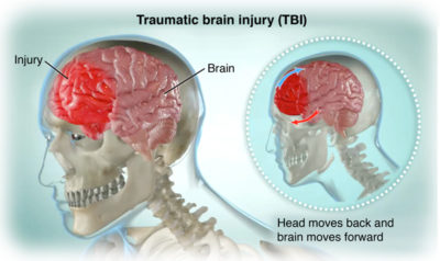 Illustration of How To Deal With Blood Clots Outside The Skull?