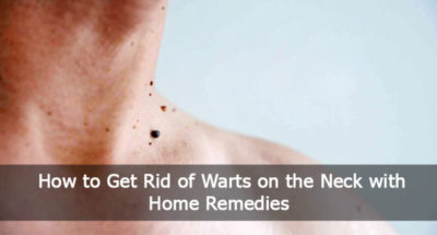Illustration of How To Get Rid Of Warts On The Neck?