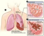 Explanation Of The Results Of Pneumonia Inflammation?