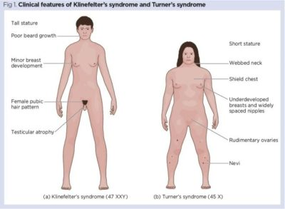 Illustration of Can Women With Turner Syndrome Have Offspring?