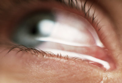 Illustration of The Cause Of The Eyes Feel Sore, Sore And Runny?