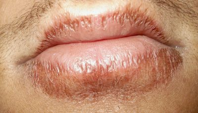 Illustration of How To Treat Suppurating Lips From Being Bitten To Bleed?